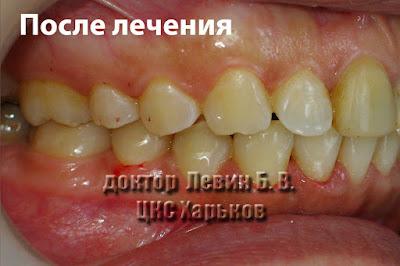 Фото зубов в боковом участке смыкание по II классу