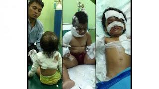 Anak-anak korban teror bom Gereja Oikumene, Samarinda