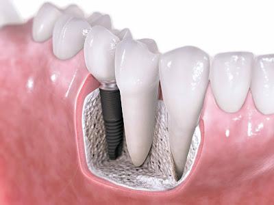 Cấy ghép răng implant bao lâu thì lành