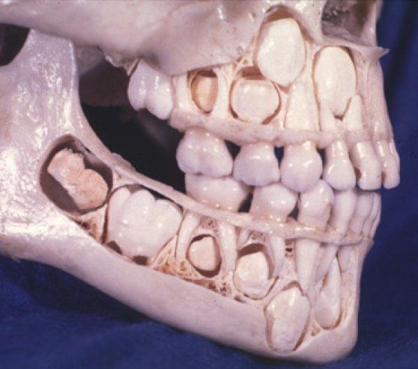 Losing Adult Teeth 8