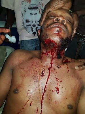 WHAT!! You Need To See How Two Brothers Stabbed Each Other Because Of Politics In Imo (SEE Photos)