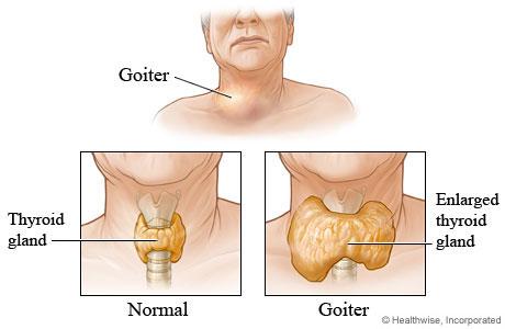 Pembengkakan kelenjar tiroid yang dinamakan goiter.