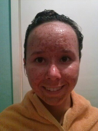 How to get rid of redness of a pimple