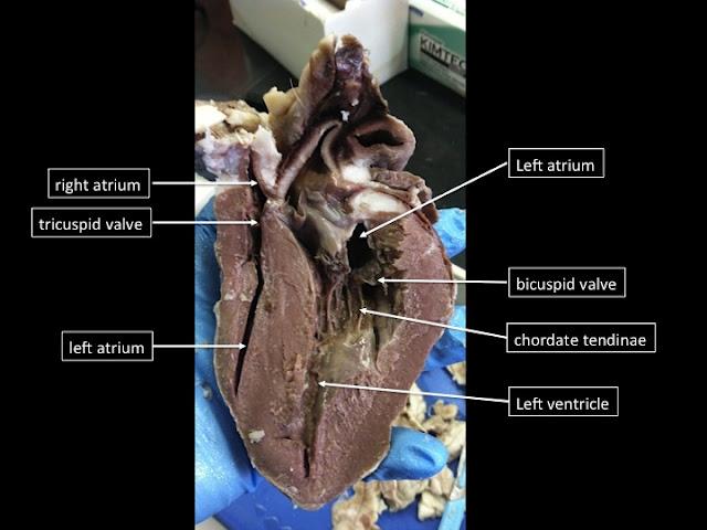 Girls Rock Bio: Sheep Heart Dissection