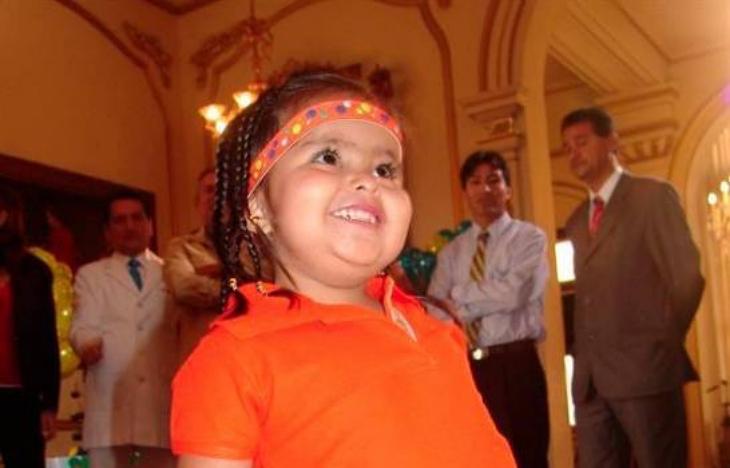 """Muere la """"niña sirenita"""" peruana a los 15 años"""