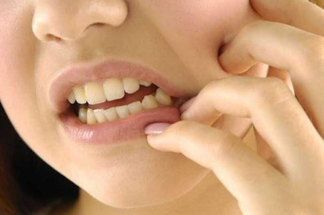 Cara mengobati sakit gigi dengan obat tradisional