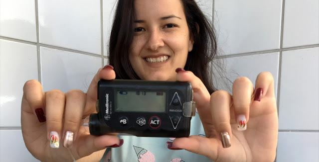 bomba-de-insulina-medtronic-veo