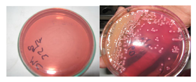 MacConkey Agar dan MacConkey Agar yang ditumbuhi bakteri