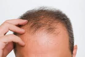Cara Menumbuhkan Rambut Botak Dengan Cepat dan Alami