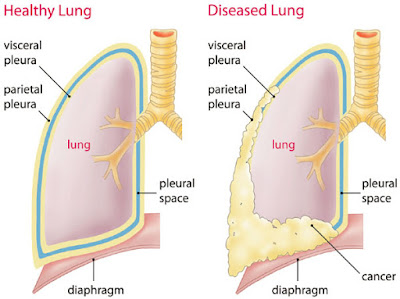 Pleural Mesothelioma Treatment Options