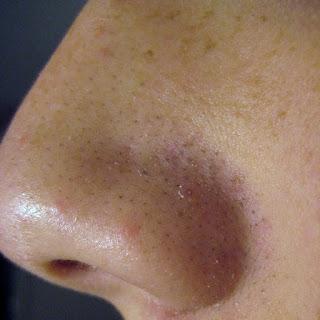 Cara Mengangkat Komedo Yang Membandel Di Hidung