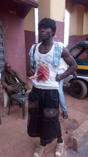 Man Seen In Imo Moving About With Blood Stain And Knife Stuck In His Stomach 3