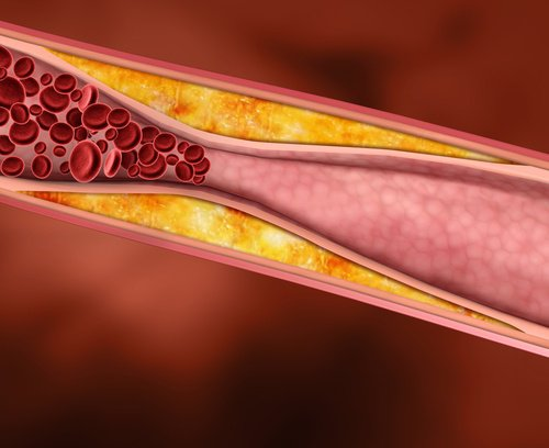 Contrôler le mauvais cholestérol