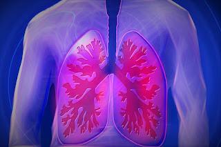 Cara alami mengobati penyakit paru paru
