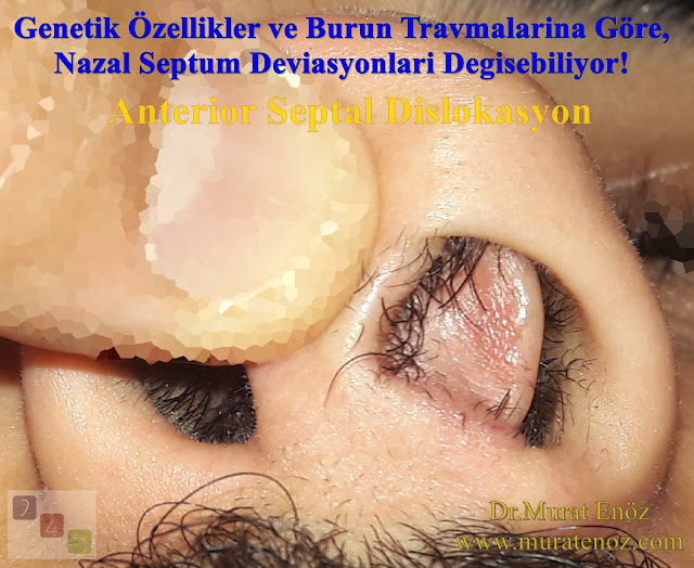 Kaudal Septum Deviasyonu - Anterior Septal Dislokasyon - Kaudal Septoplasti - Kaudal Septum Deviasyonu Tedavisi