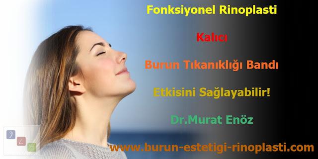 Burun tıkanıklığı bandı - Burun tıkanıklığı tedavisi - Fonskiyonel rinoplasti - Burun tıkanıklığı nedenleri - Burun tıkanıklığı ameliyatı - Burun tıkanıklığı için tedavi - Burun tıkanıklığı çözüm