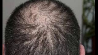 image of baldness in men