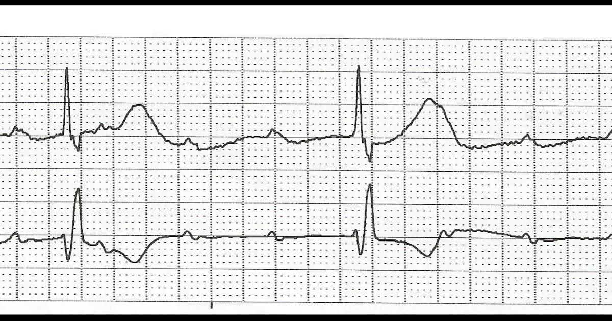 Float Nurse: Practice ECG Rhythm Strips 131