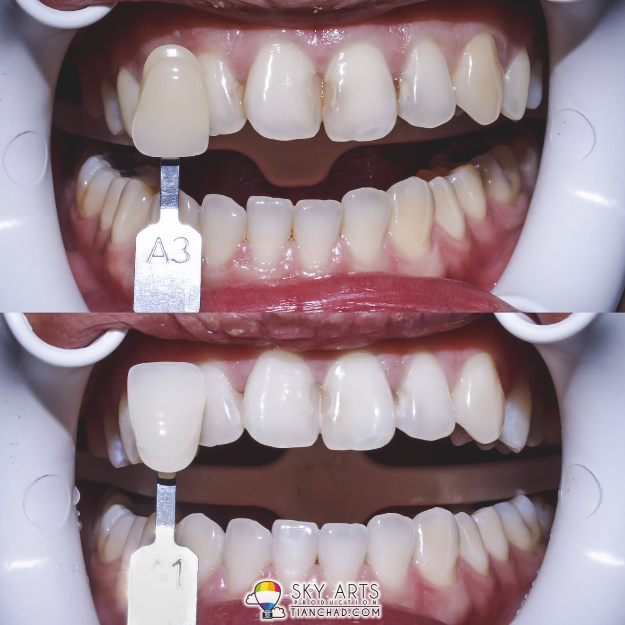 How Much Does Laser Teeth Whitening Cost In South Africa Teethwalls