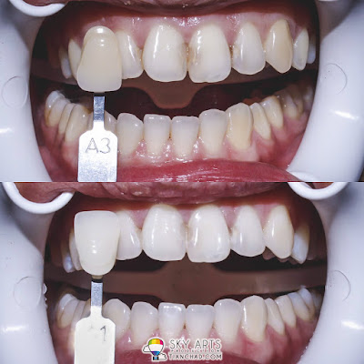 Laser Teeth Whitening Before and After Photo - A3 Tone to A1 Tone