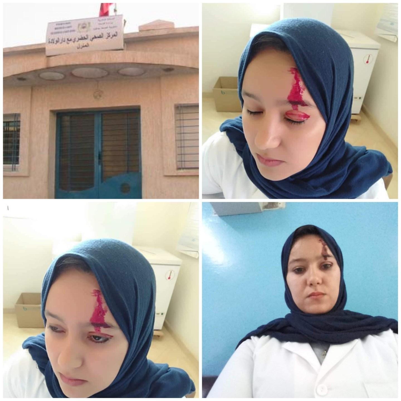 الاعتداء على ممرضة داخل مركز صحي بصفرو