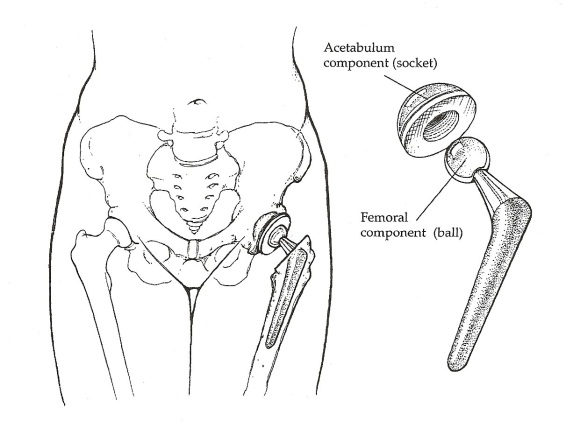 quão comuns são coágulos sanguíneos após cirurgia de substituição da anca
