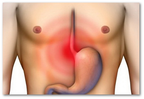 Ceaiuri pentru dispepsie (indigestie)
