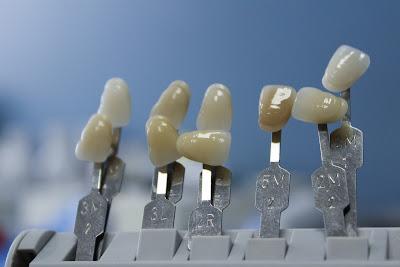 مسكن قوي لالم الاسنان,مسكن الم الاسنان,دواء الاسنان,علاج الم الاسنان,الاسنان,