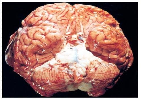 http://2.bp.blogspot.com/-gL7lo1rfUo4/VRZpMclenQI/AAAAAAAAAwU/5xWxQm1XIb8/s1600/otak-meningitis.jpg