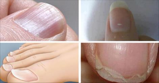 Bad Nail Conditions That Has Something To Tell About Your Health And How To Treat One Of Those!