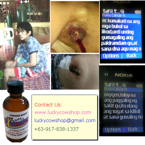 Eximius Miracle Oil Testimonial Cancer