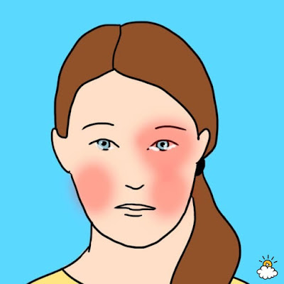 Headache Type 4: Cluster