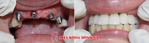 IMPLANT NHA KHOA -0