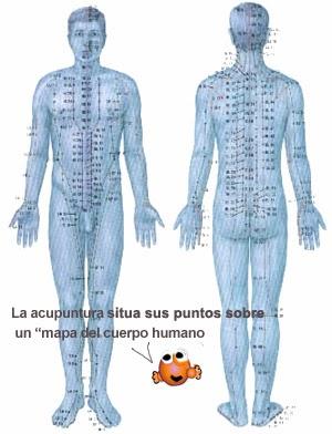 ¿Cómo funciona la acupuntura para la hipertensión?