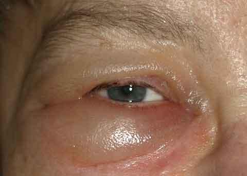 Penyebab mata panda dan cara mengobatinya Informasi Obat