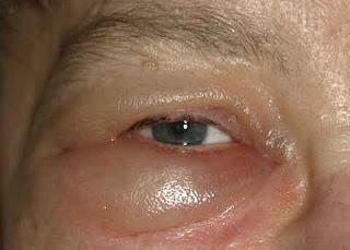Mata panda terdapat pada bagian bawah kulit mata