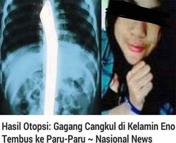 Kronologi Gadis Dibunuh Kejam, Dijolok Batang Cangkul Hingga Maut Di Indonesia