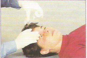 Penanganan/Pertolongan Pertama (P3K) Luka Bakar Kimia Pada Mata