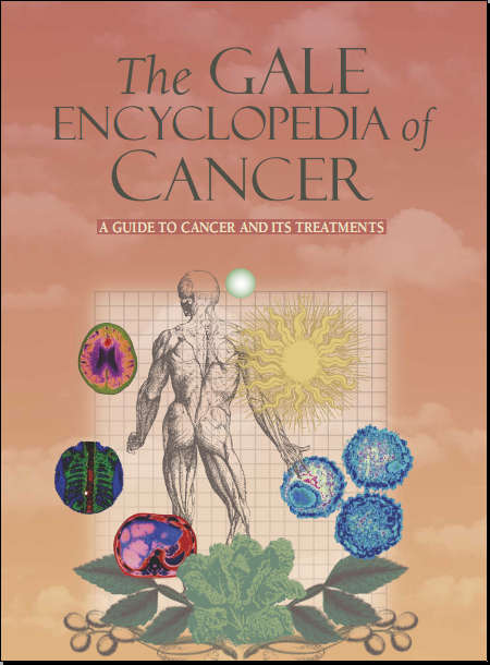 Gale Encyclopedia of Cancer [PDF]