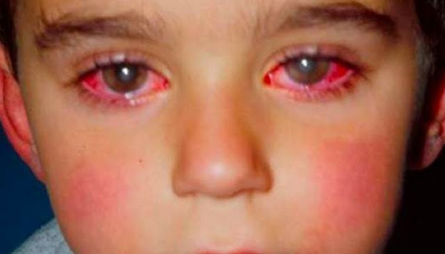 Hati-Hati!!, Mainan Berikut Dapat Menyebabkan Kebutaan Pada Anak