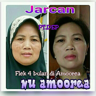 4 Testimoni sabun amoorea di Belitung