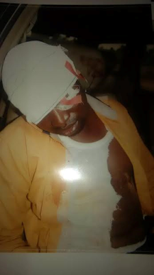 Photos: Lawyer left for dead after alleged brutal beating by 5 soldiers in Delta State