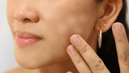 Apakah Mandi Saat Berkeringat Bisa Mengakibatkan Penyakit Panu