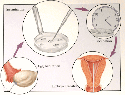 IVF Treatment in Bangalore