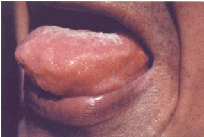 Paracoccidioidomycosis - Symptoms - Diagnosis – Treatment