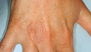 Granuloma-Annulare-Natural-Treatment