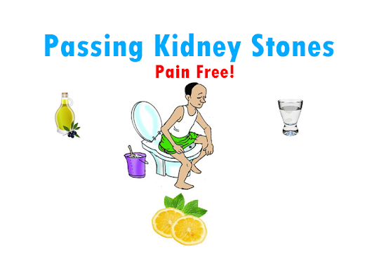 How to Prevent and Get Rid of Kidney Stones Naturally