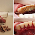 Remove Extreme Tartar And Plaque Build-Up Without Going To The Dentist
