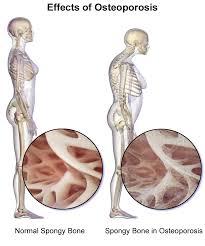 Jelaskan Tiga Kelainan Pada Tulang Belakang : jelaskan, kelainan, tulang, belakang, MACAM-MACAM, KELAINAN, ORGAN, GERAK, PASIF, (TULANG), Kurikulum, Pelajaran
