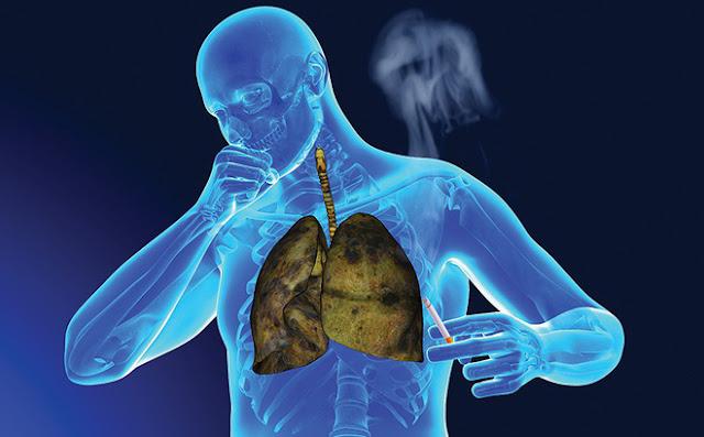 Ung thư phổi tiên lượng xấu nếu phát hiện muộn: Chỉ cần có dấu hiệu này là phải khám ngay!